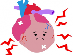 動脈硬化によって引き起こされる疾患