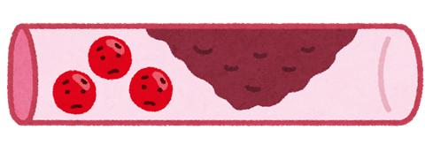 血中脂質について